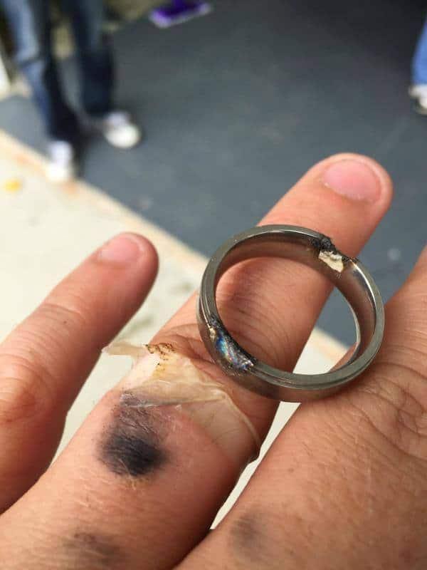 Prsten spálený elektřinou